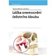 Léčba onemocnění čelistního kloubu - Vladimír Machoň, kolektiv a