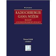 Radiochirurgie gama nožem - Roman Liščák, kolektiv a