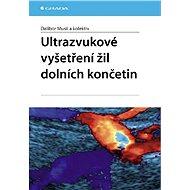Ultrazvukové vyšetření žil dolních končetin - Dalibor Musil, kolektiv a