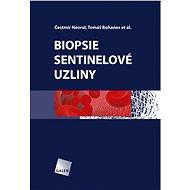 Biopsie sentinelové uzliny - Čestmír Neoral, Tomáš Bohanes