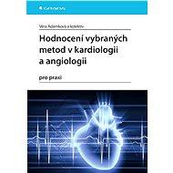 Hodnocení vybraných metod v kardiologii a angiologii pro praxi - Věra Adámková, kolektiv a