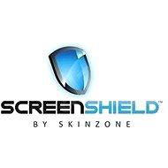 Screen Nvidia Schild für Ganzkörper-Tablette