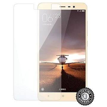 ScreenShield Tempered Glass Xiaomi Redmi Note 3 (XIA-TGREDNO3-D)