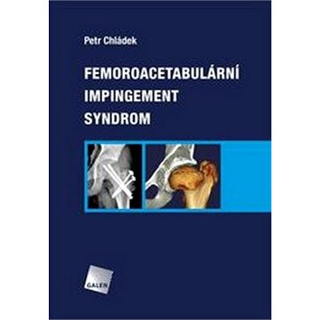 Femoroacetabulární impingement syndrom (978-80-7492-251-0)