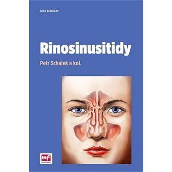 Rinosinusitidy (978-80-204-4175-1)
