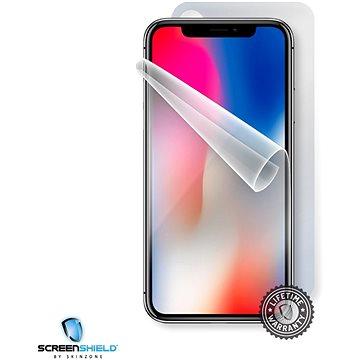 Screenshield APPLE iPhone X na celé tělo (APP-IPHX-B)