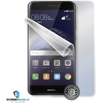 ScreenShield pro Huawei P9 lite 2017 pro celé tělo (HUA-P9LT17-B)