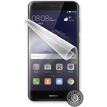 ScreenShield pro Huawei P9 lite (2017) pro displej (HUA-P9LT17-D)
