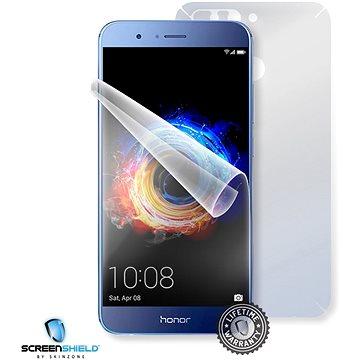 Screenshield HUAWEI Honor 8 Pro na celé tělo (HUA-HON8PR-B)