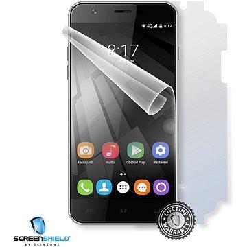 Screenshield UMAX VisionBook P55 LTE na celé tělo (UMA-VBP55-B)