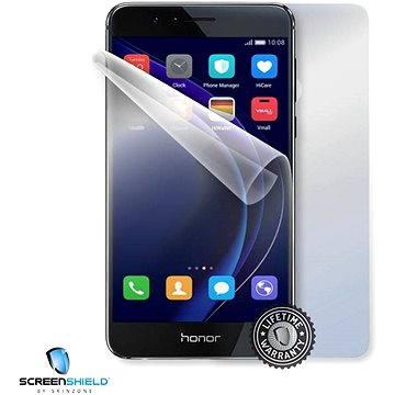 ScreenShield pro Honor 8 na celé tělo telefonu (HUA-HON8-B)