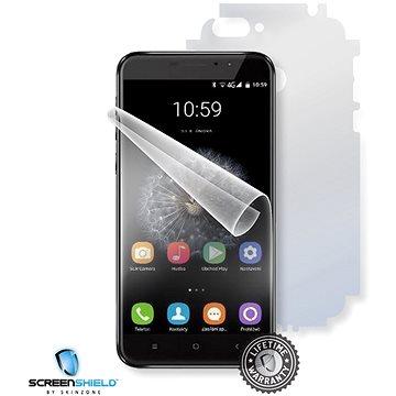 Screenshield UMAX VisionBook P55 LTE Pro na celé tělo (UMA-VBP55PR-B)