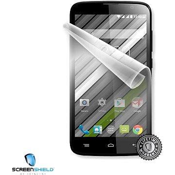 ScreenShield pro Gigabyte GSmart Roma RX displej telefonu (GIG-GSRRX-D)