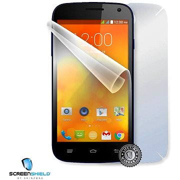 ScreenShield pro GigaByte Gsmart Akta A4 na celé tělo telefonu (GIG-GSAA4-B)